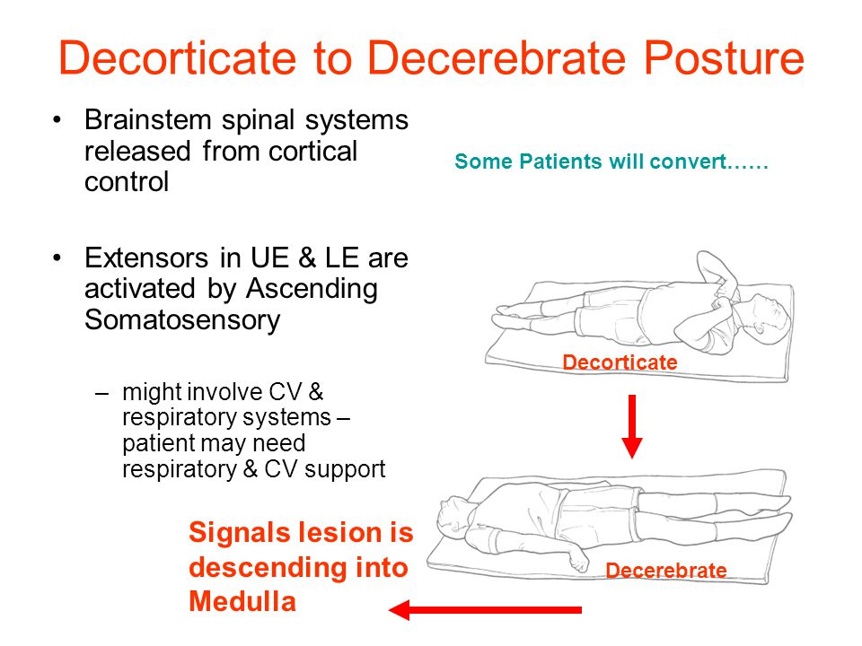 Decorticate to Decerebrate Posture