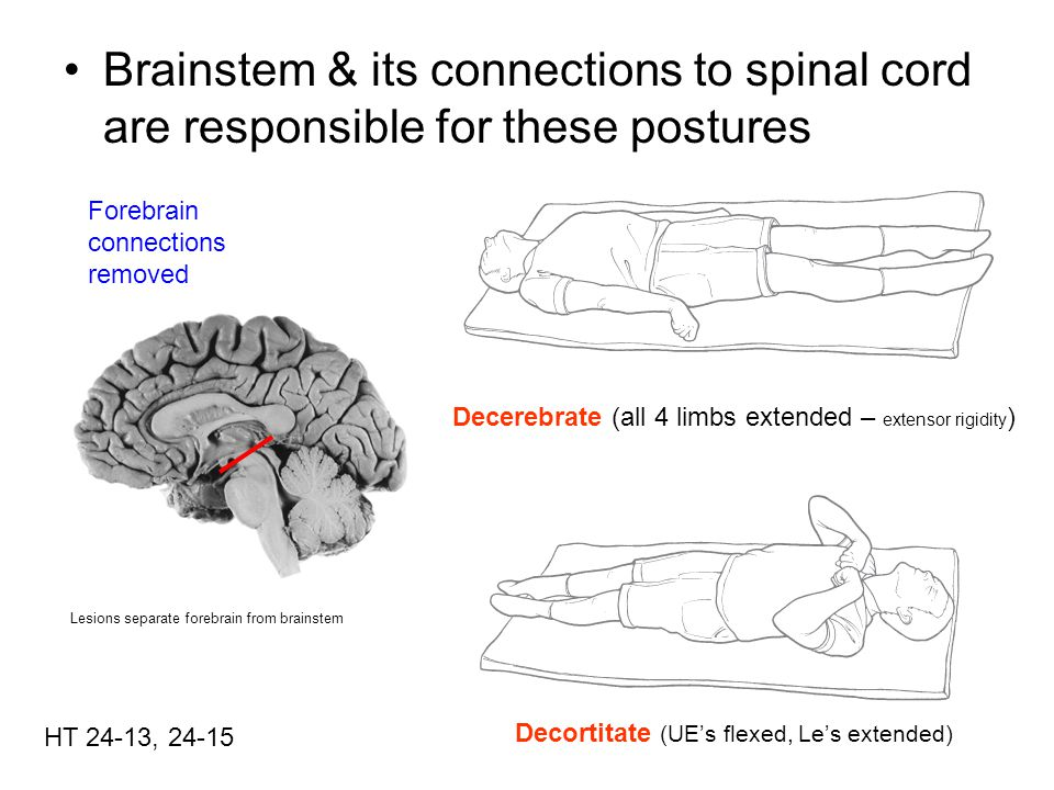 Brainstem & its connections to spinal cord are responsible for these postures
