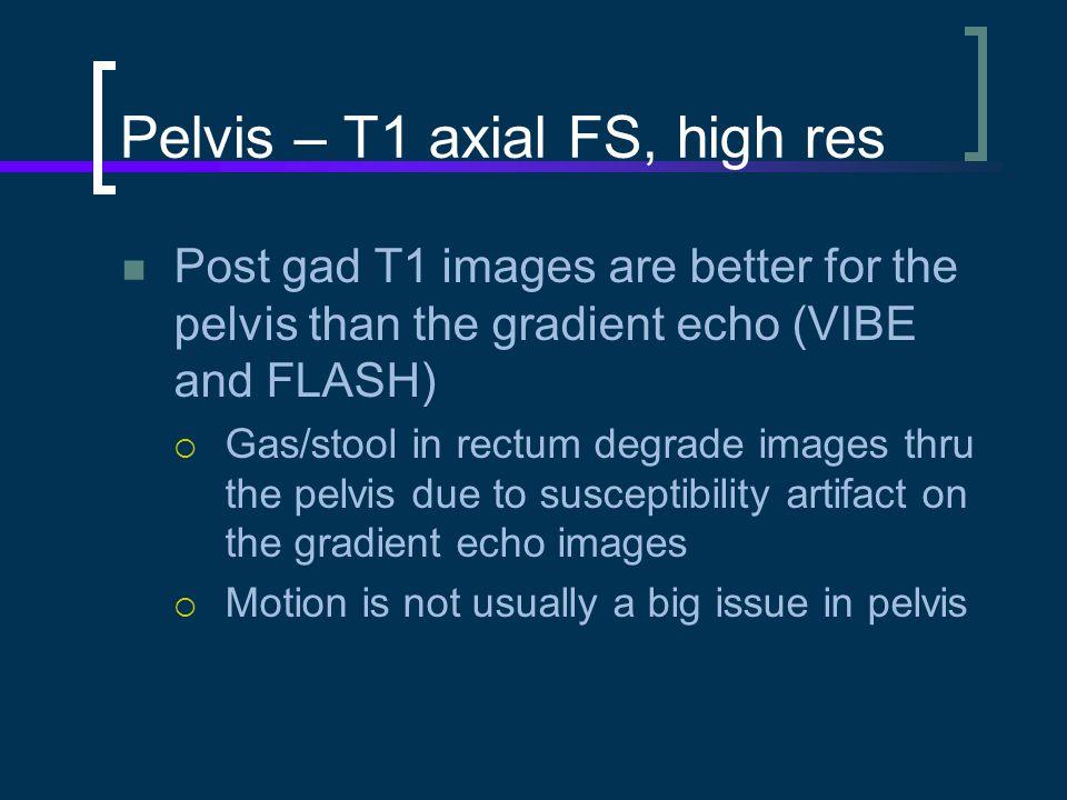 Pelvis – T1 axial FS, high res