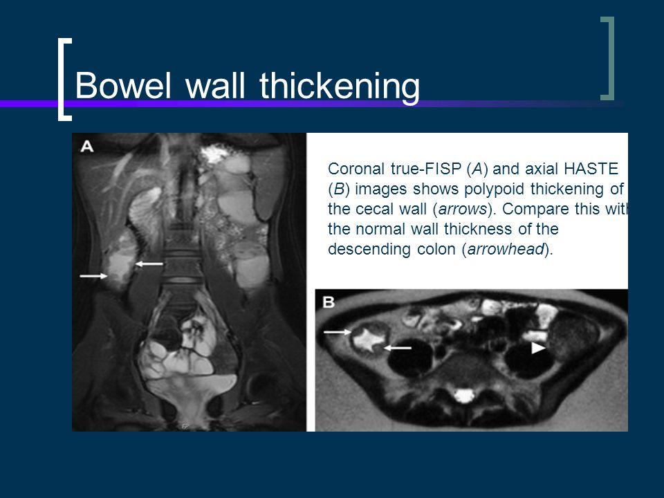 Bowel wall thickening
