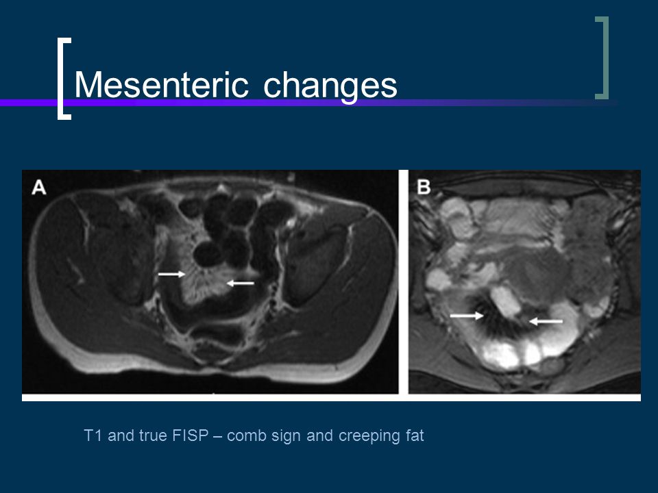 Mesenteric changes T1 and true FISP – comb sign and creeping fat