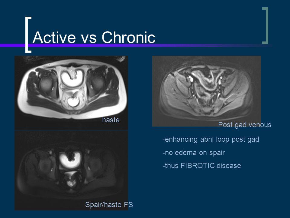 Active vs Chronic haste Post gad venous -enhancing abnl loop post gad