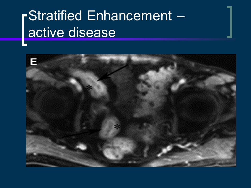 Stratified Enhancement – active disease