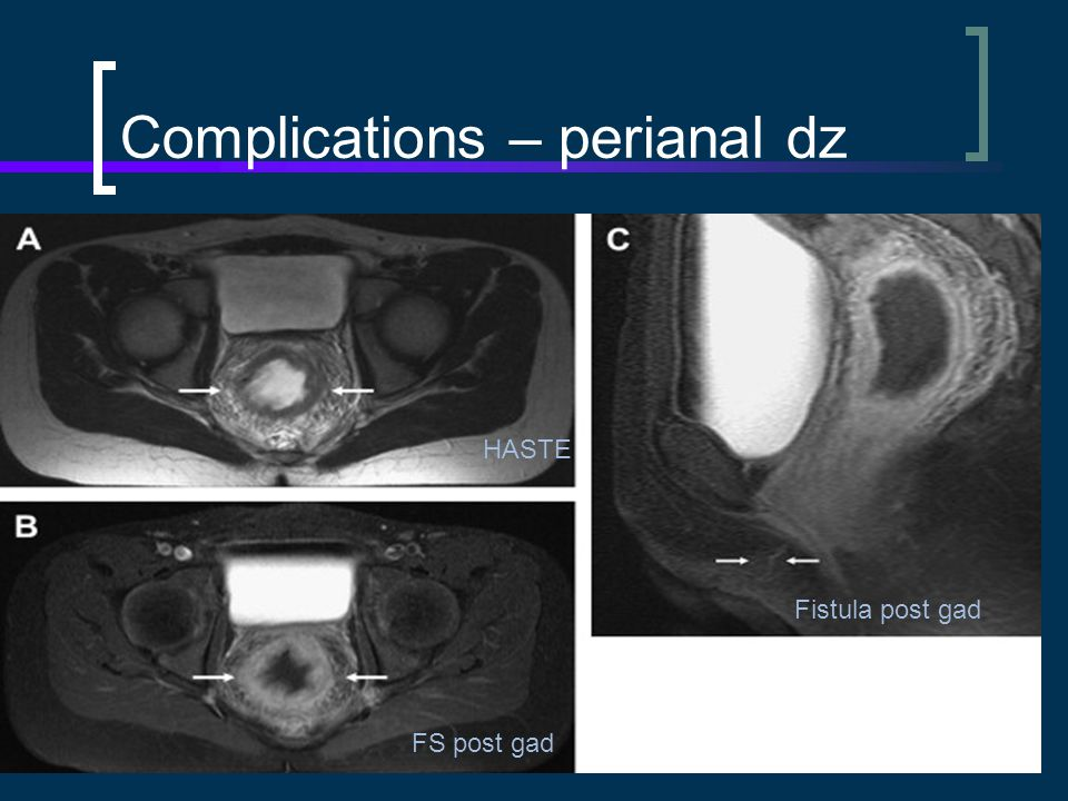 Complications – perianal dz