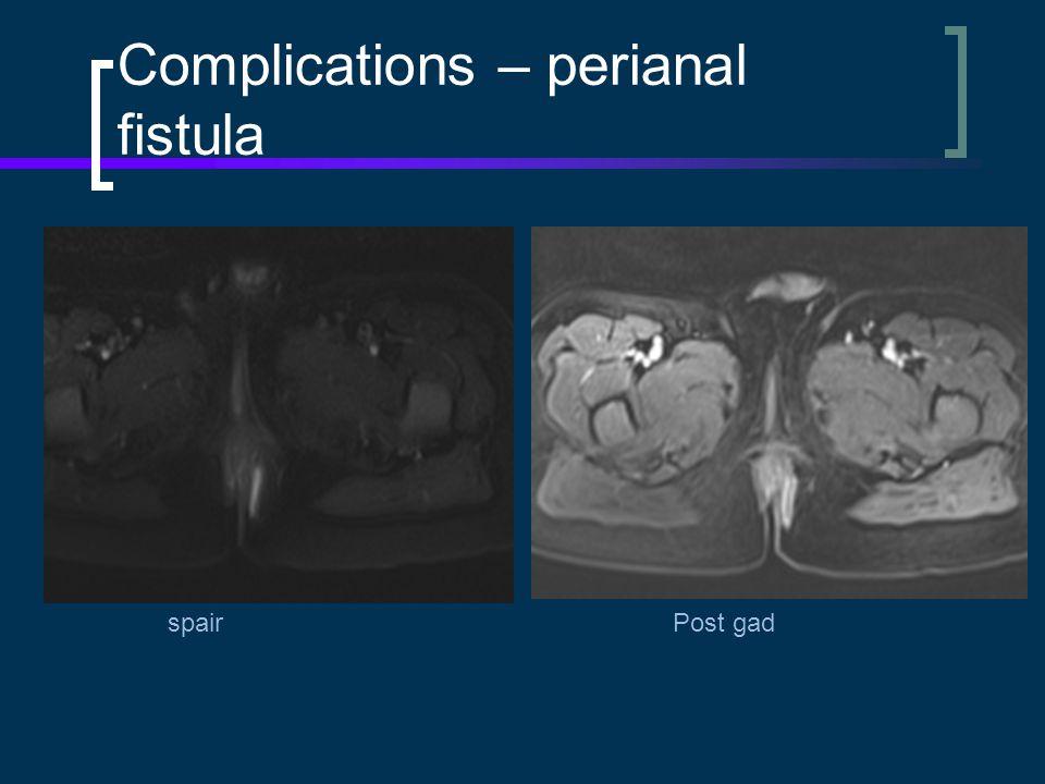 Complications – perianal fistula