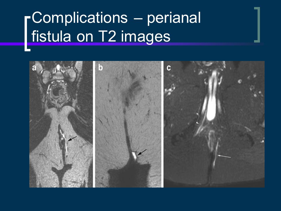 Complications – perianal fistula on T2 images