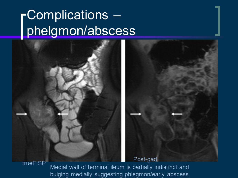 Complications – phelgmon/abscess