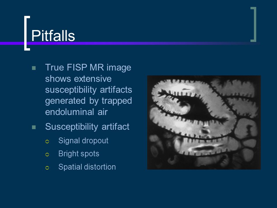 Pitfalls True FISP MR image shows extensive susceptibility artifacts generated by trapped endoluminal air.