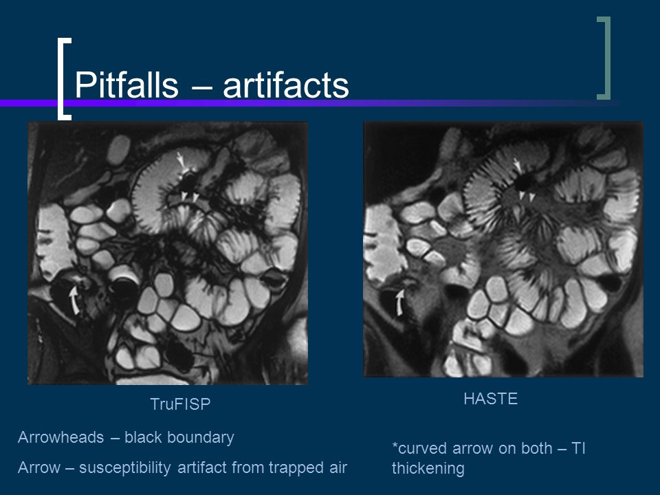 Pitfalls – artifacts HASTE TruFISP Arrowheads – black boundary