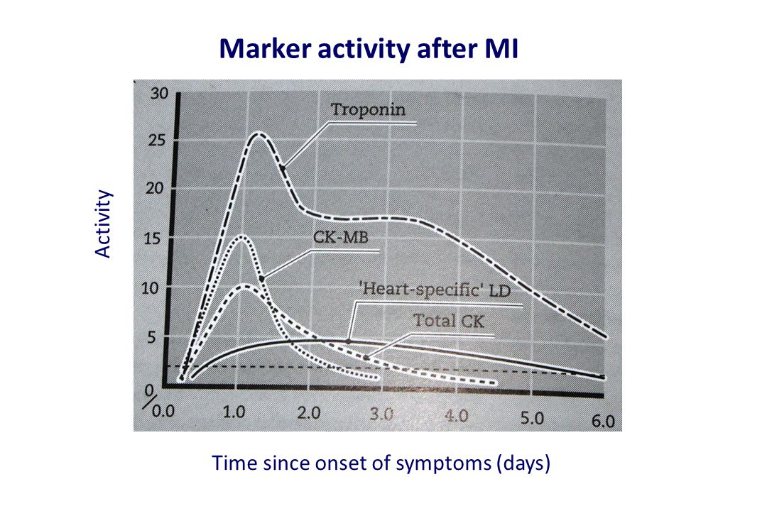 Marker activity after MI