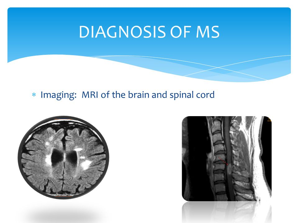 DIAGNOSIS OF MS Imaging: MRI of the brain and spinal cord