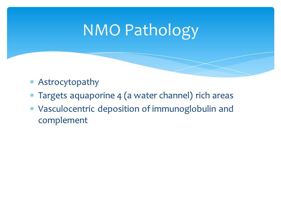 NMO Pathology Astrocytopathy