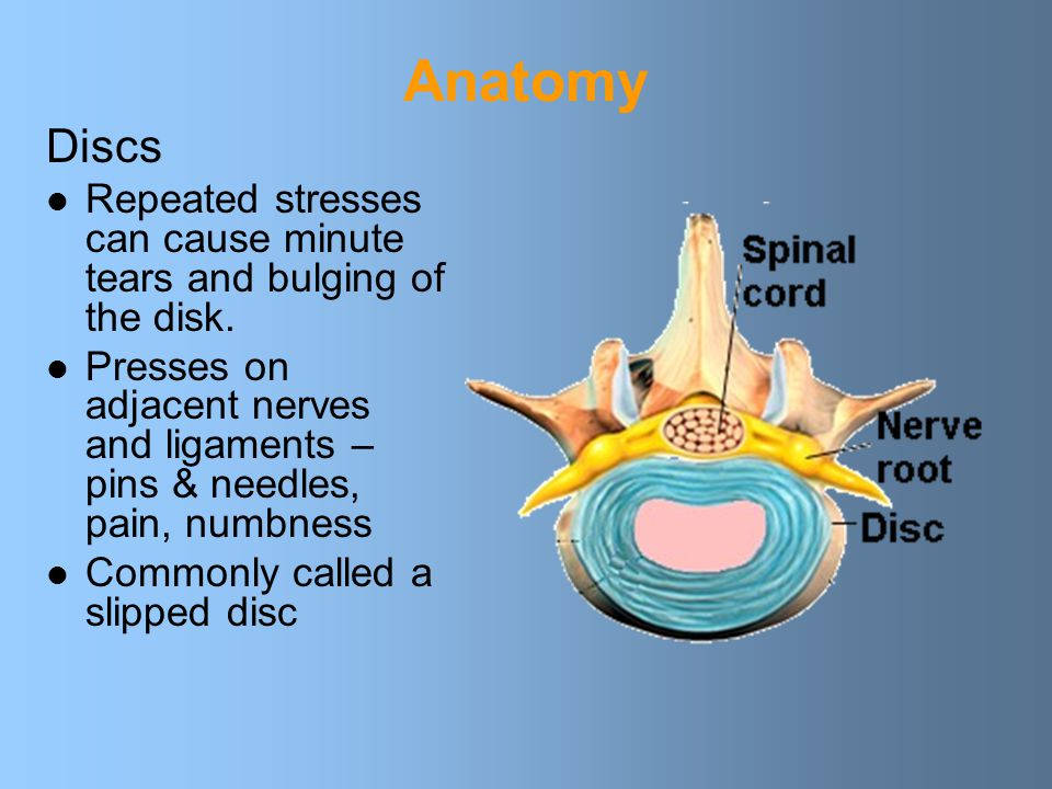 Anatomy Discs. Repeated stresses can cause minute tears and bulging of the disk.