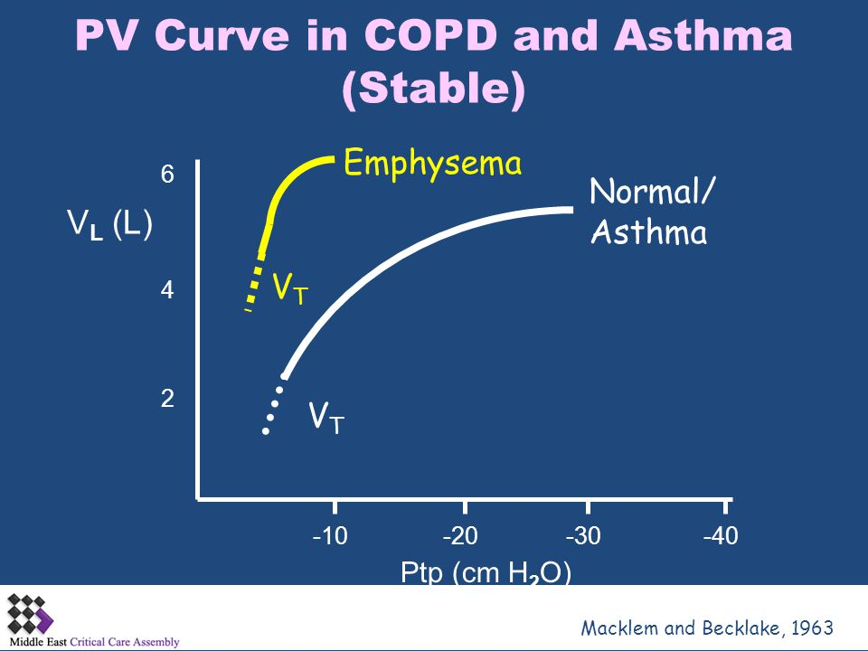 PV Curve in COPD and Asthma (Stable)