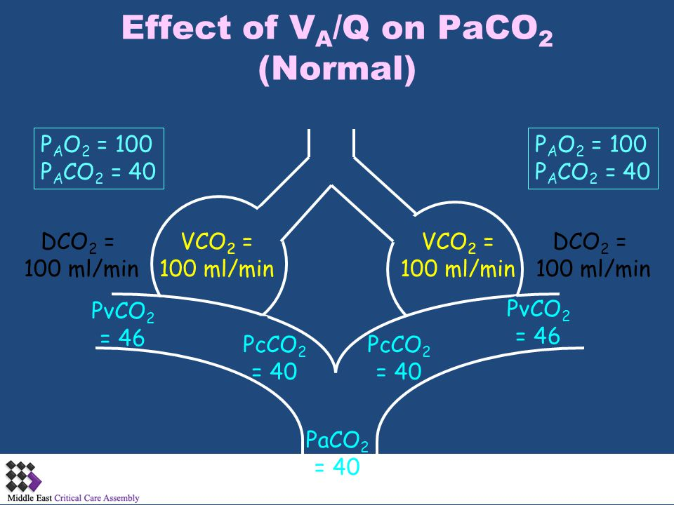 Effect of VA/Q on PaCO2 (Normal)