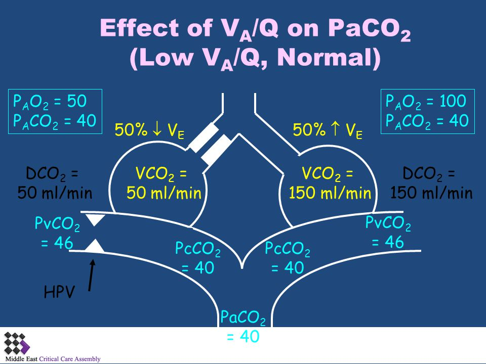 Effect of VA/Q on PaCO2 (Low VA/Q, Normal)