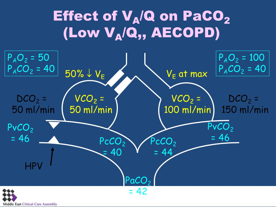 Effect of VA/Q on PaCO2 (Low VA/Q,, AECOPD)