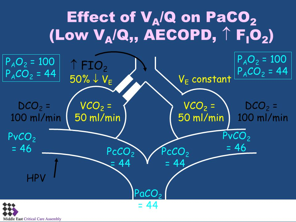 Effect of VA/Q on PaCO2 (Low VA/Q,, AECOPD,  FIO2)