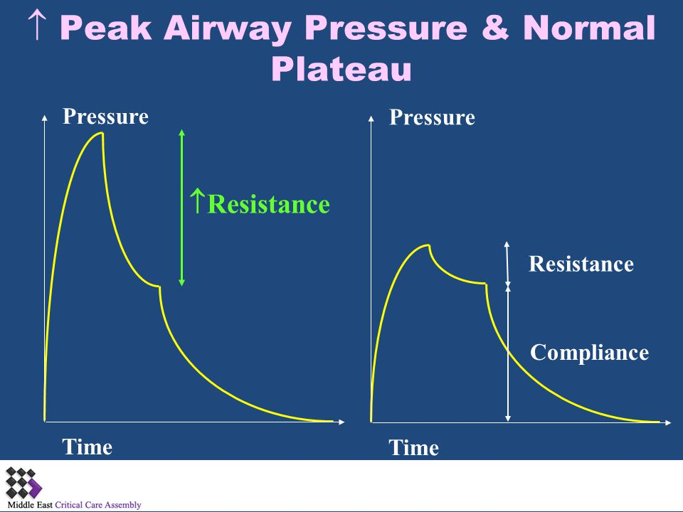  Peak Airway Pressure & Normal Plateau