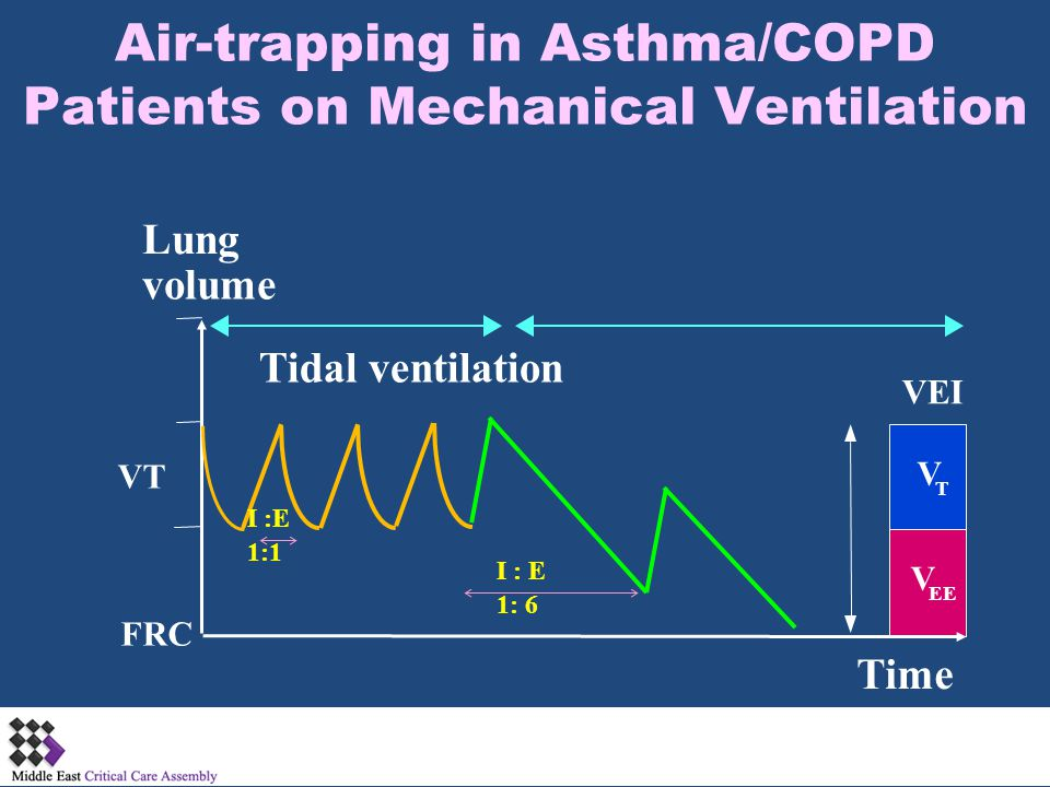 Air-trapping in Asthma/COPD Patients on Mechanical Ventilation