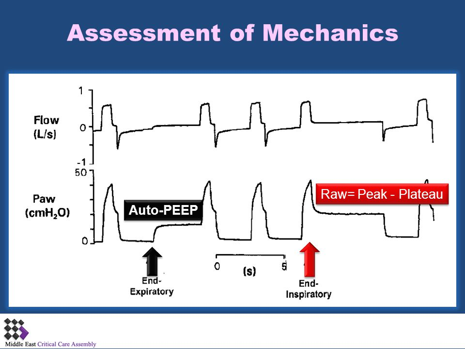 Assessment of Mechanics
