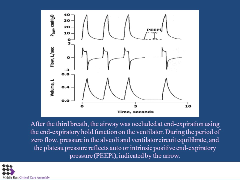 After the third breath, the airway was occluded at end-expiration using the end-expiratory hold function on the ventilator.