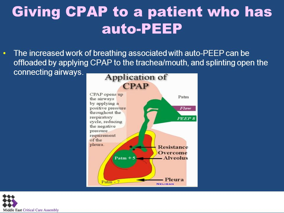 Giving CPAP to a patient who has auto-PEEP