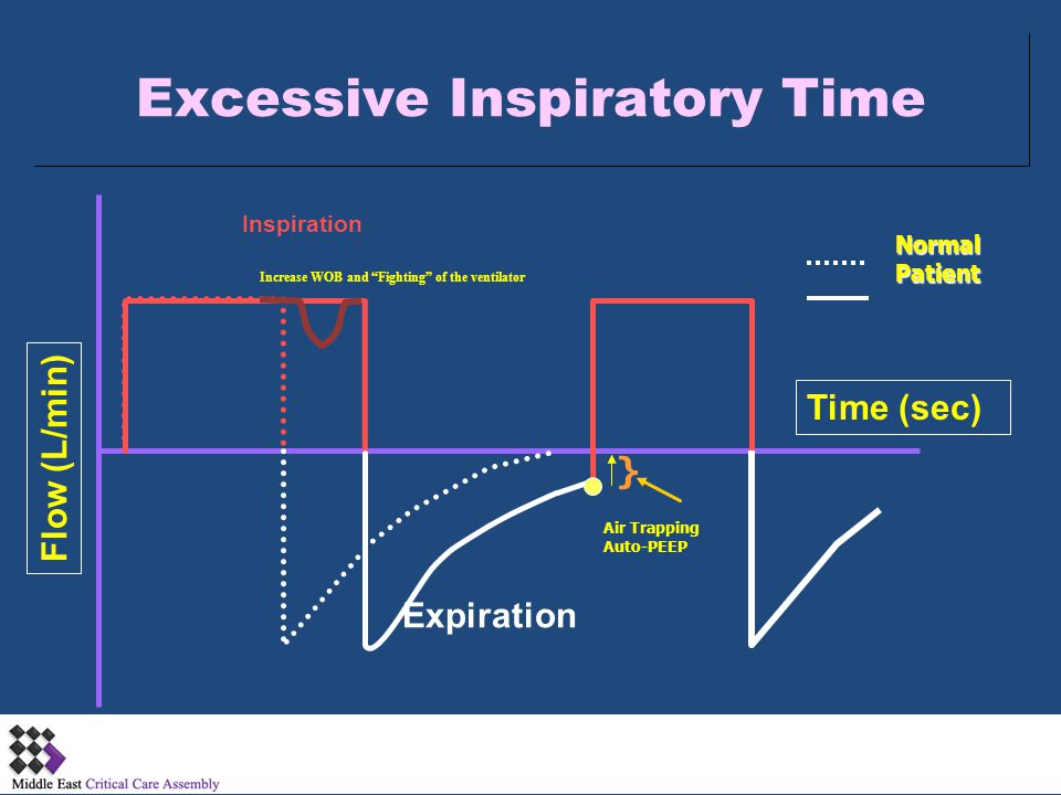 Excessive Inspiratory Time