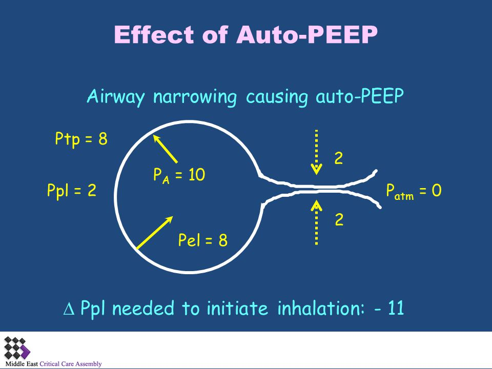 Effect of Auto-PEEP Airway narrowing causing auto-PEEP