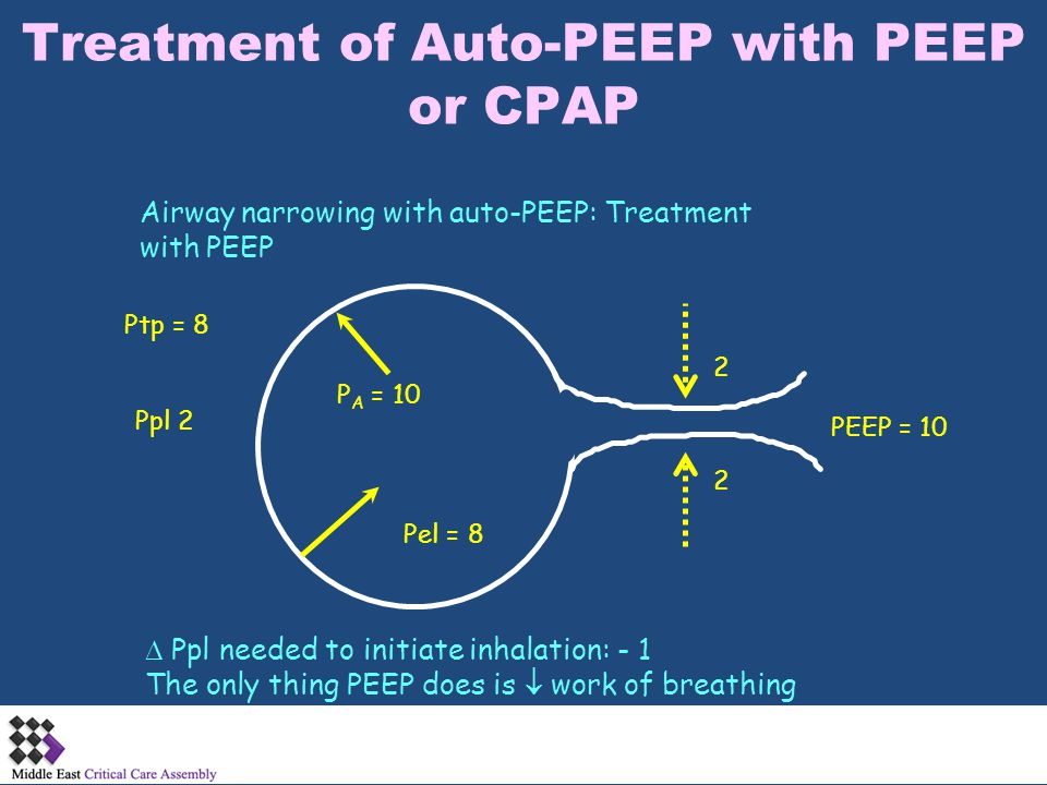 Treatment of Auto-PEEP with PEEP or CPAP