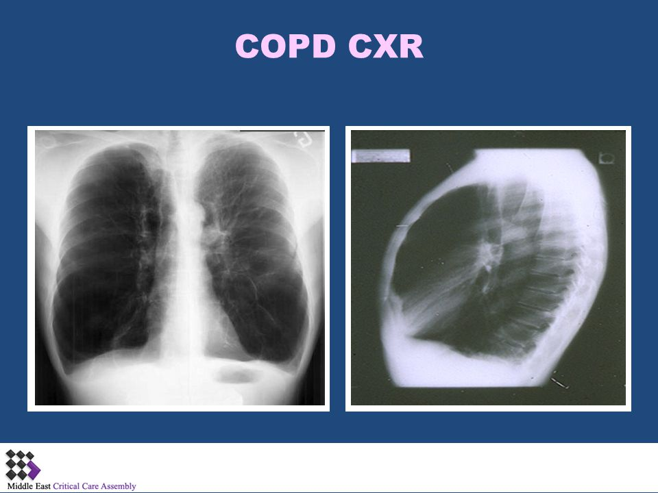 COPD CXR