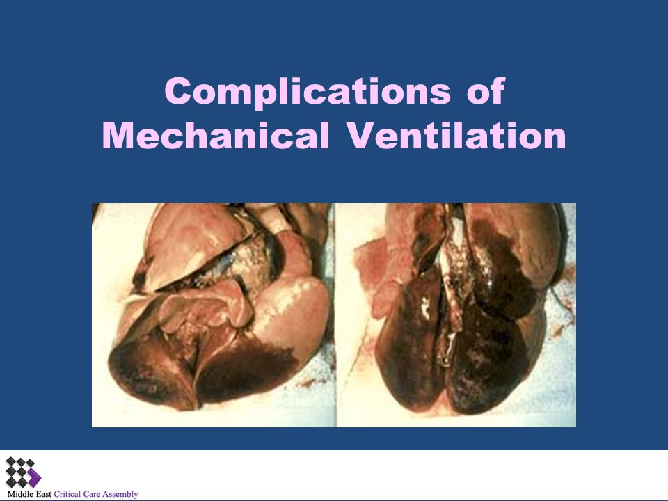 Complications of Mechanical Ventilation