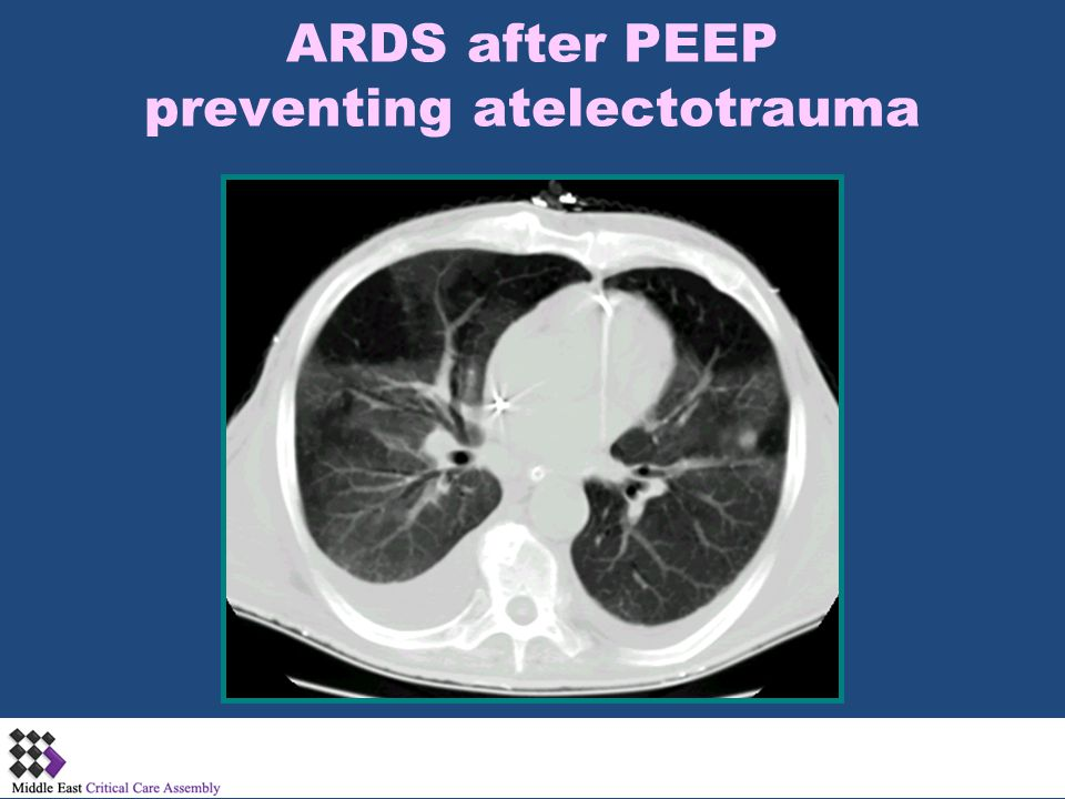 ARDS after PEEP preventing atelectotrauma