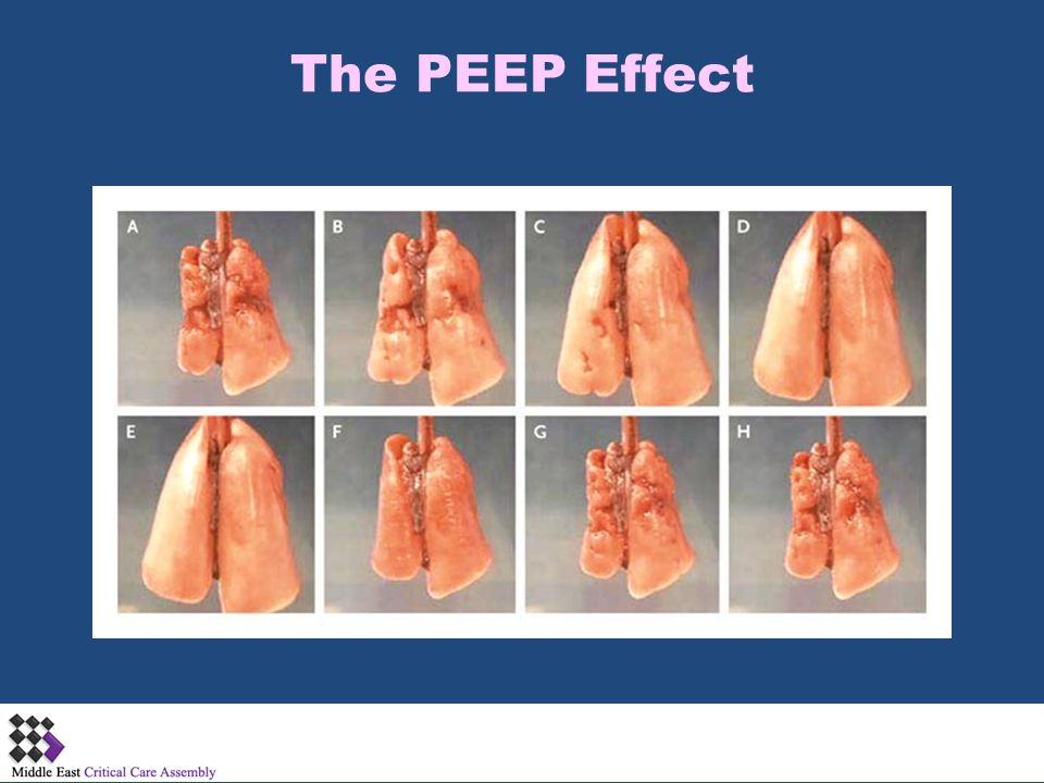 The PEEP Effect NEJM 2006;354:1839-1841