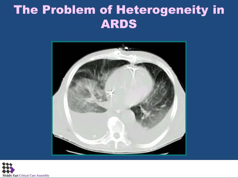 The Problem of Heterogeneity in ARDS