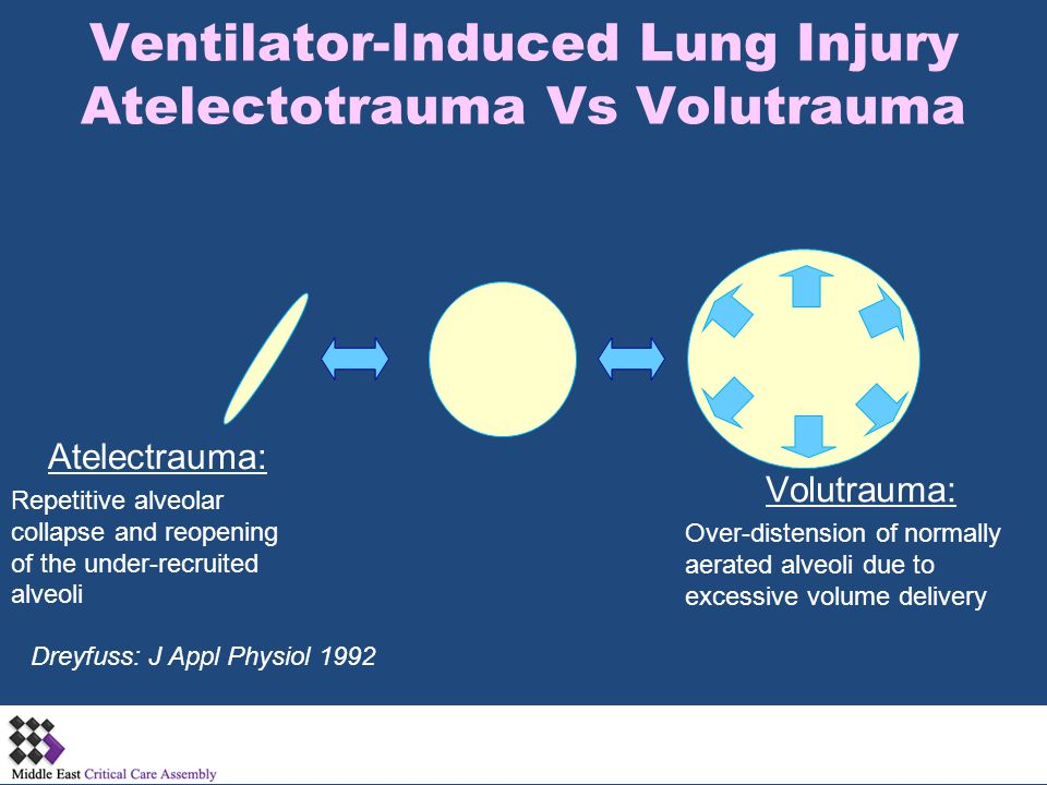 Ventilator-Induced Lung Injury Atelectotrauma Vs Volutrauma
