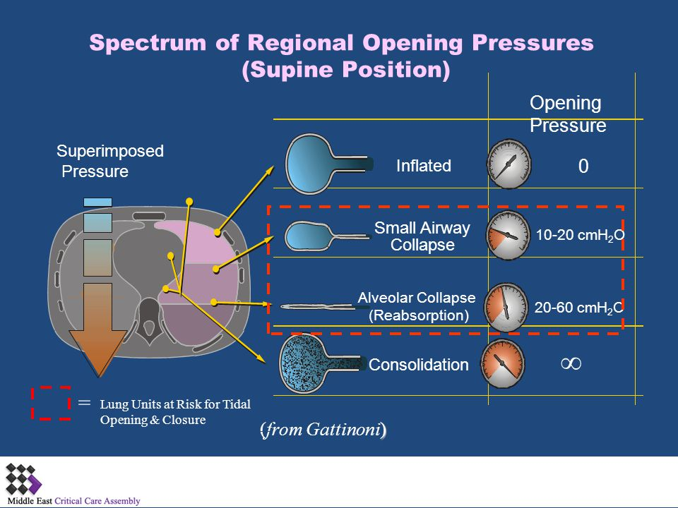 Spectrum of Regional Opening Pressures (Supine Position)