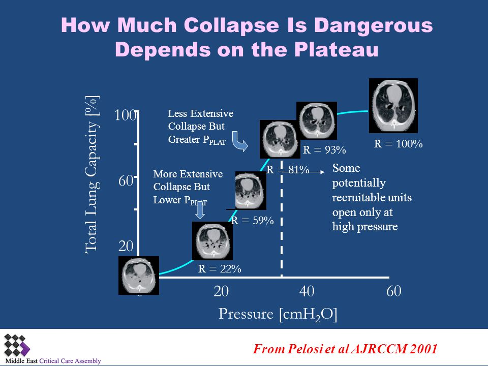 How Much Collapse Is Dangerous Depends on the Plateau
