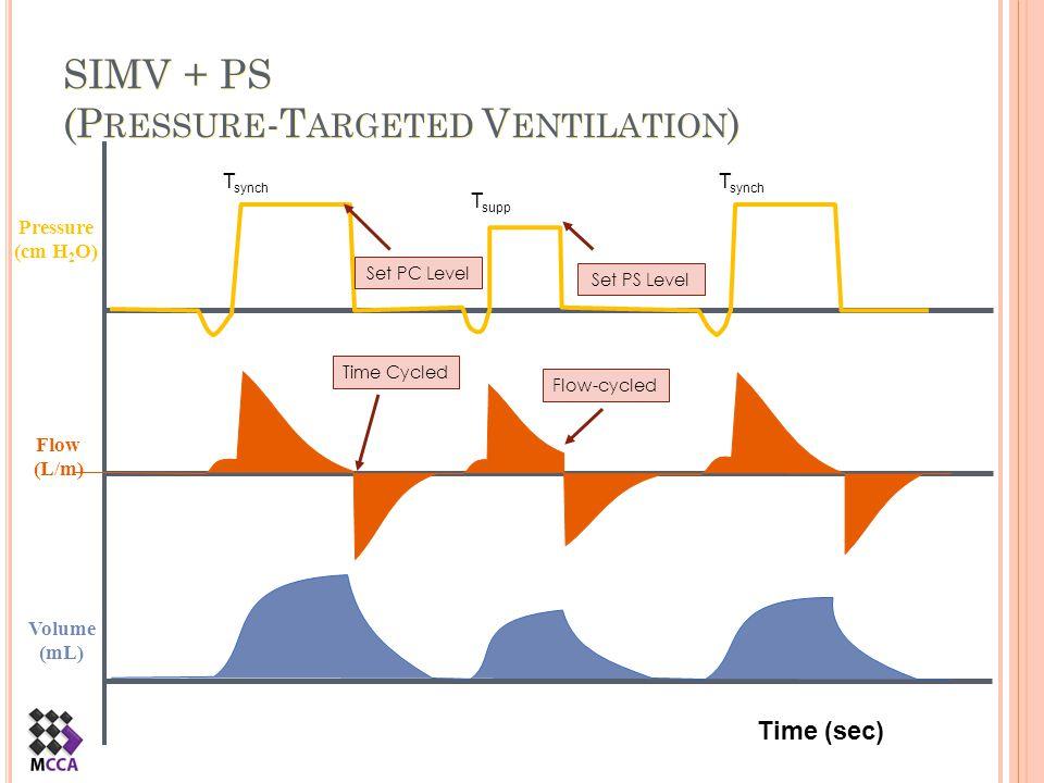 SIMV + PS (Pressure-Targeted Ventilation)