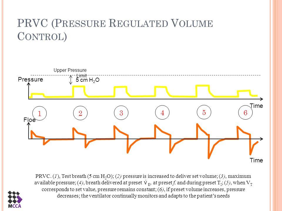 PRVC (Pressure Regulated Volume Control)