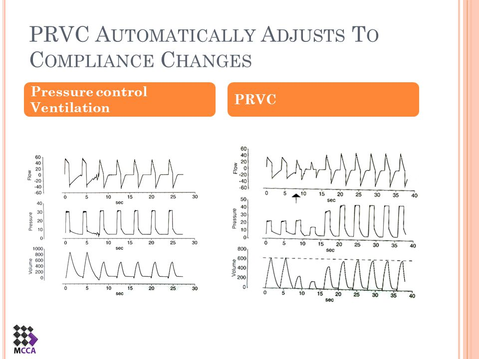 PRVC Automatically Adjusts To Compliance Changes