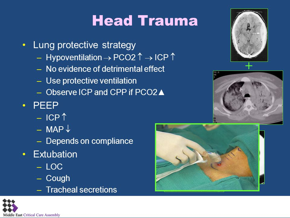 Head Trauma + Lung protective strategy PEEP Extubation