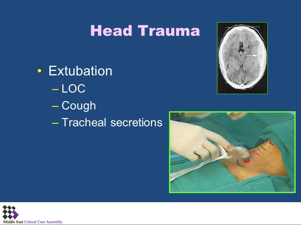 Head Trauma Extubation LOC Cough Tracheal secretions