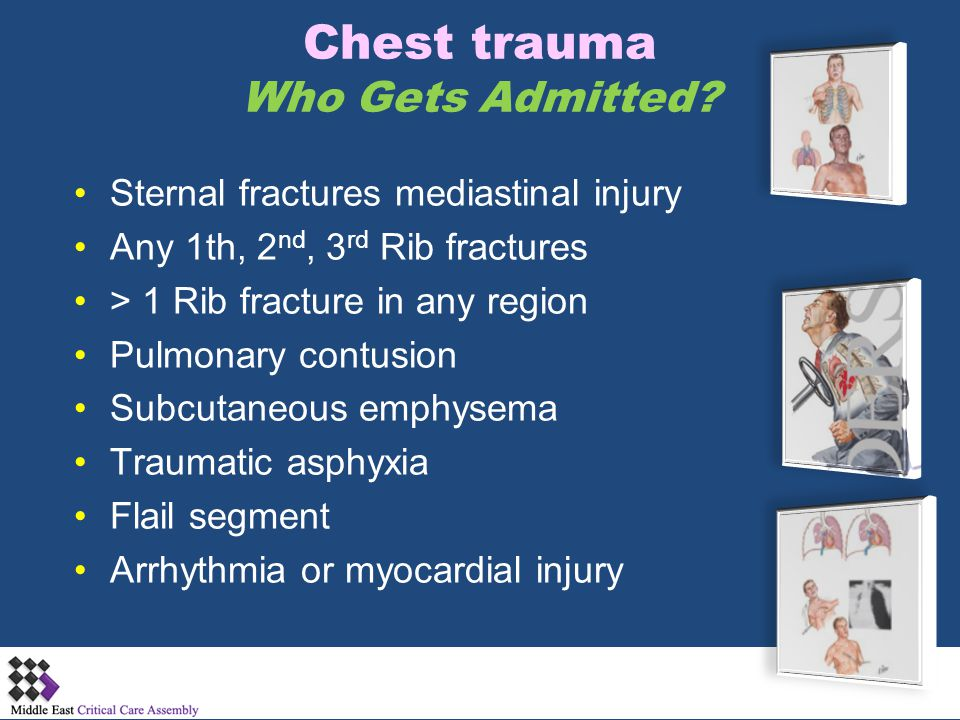 Chest trauma Who Gets Admitted