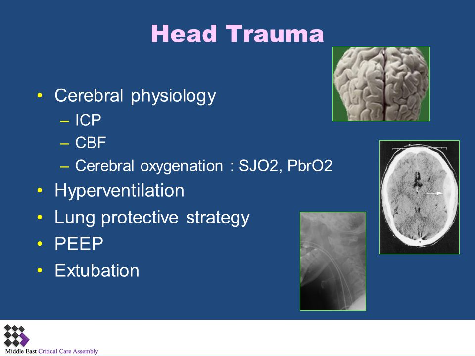 Head Trauma Cerebral physiology Hyperventilation