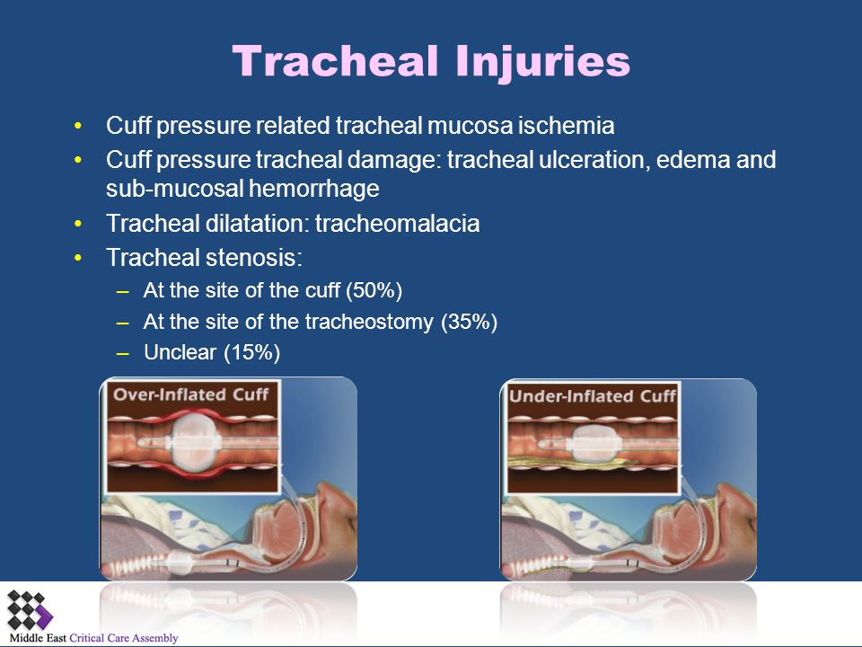 Tracheal Injuries Cuff pressure related tracheal mucosa ischemia