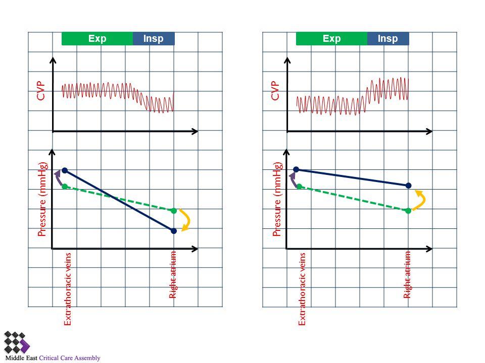 CVP CVP Pressure (mmHg) Pressure (mmHg) Exp Insp Exp Insp Right atrium