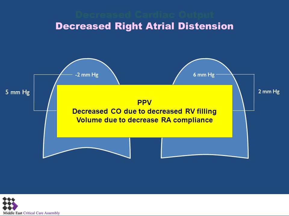 Decreased Cardiac Output Decreased Right Atrial Distension