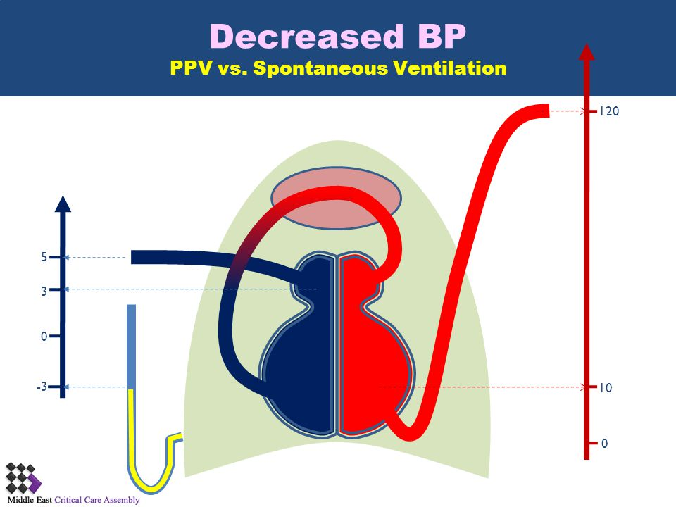 Decreased BP PPV vs. Spontaneous Ventilation