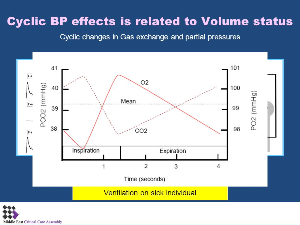 Cyclic BP effects is related to Volume status